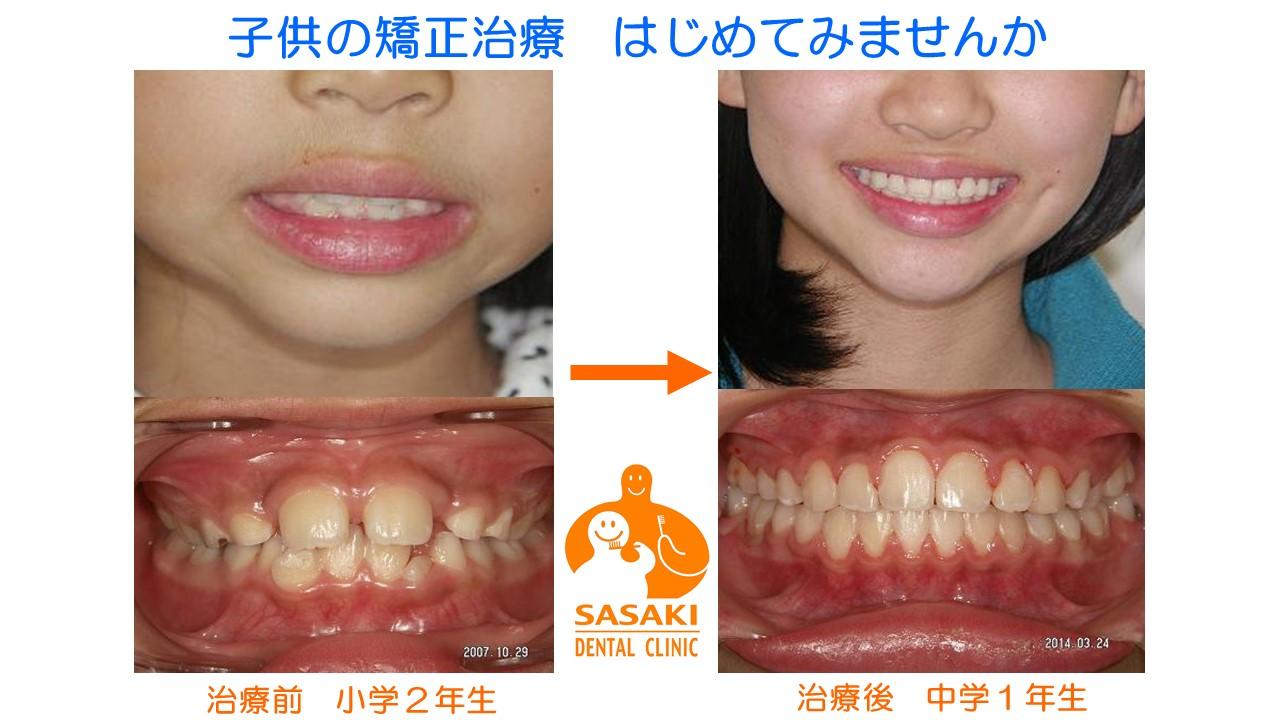 http://www.sasaki-shika.net/case/%E3%83%A2%E3%83%87%E3%83%AB1.JPG