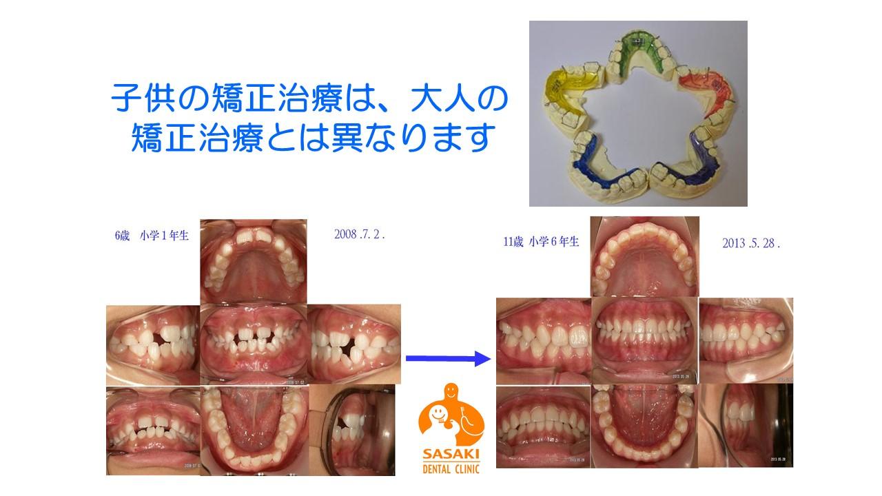http://www.sasaki-shika.net/case/%E3%83%A2%E3%83%87%E3%83%AB2.JPG
