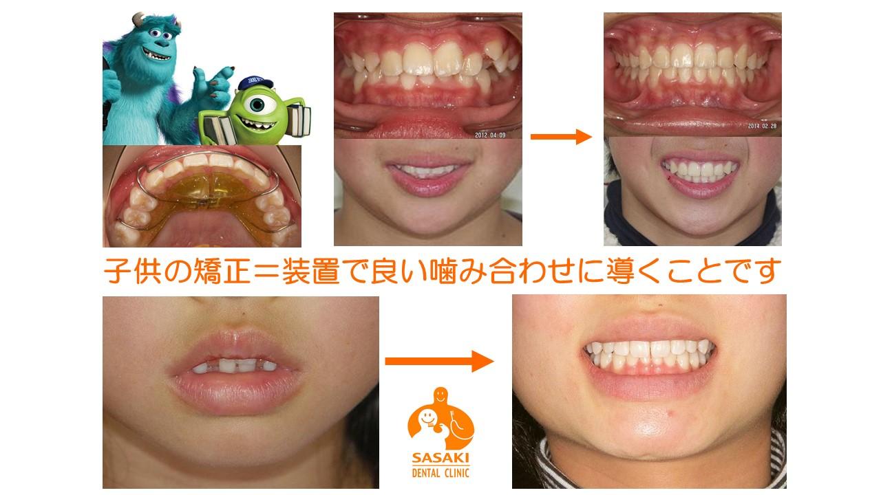 http://www.sasaki-shika.net/case/%E3%83%A2%E3%83%87%E3%83%AB4.JPG