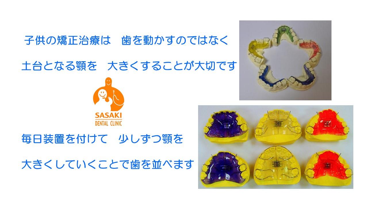 http://www.sasaki-shika.net/case/%E3%83%A2%E3%83%87%E3%83%AB5.JPG
