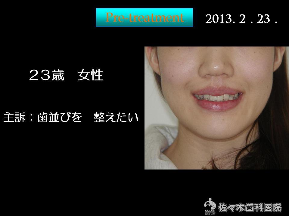 http://www.sasaki-shika.net/case/%E5%A0%A4%E7%A9%82%EF%BC%91.JPG