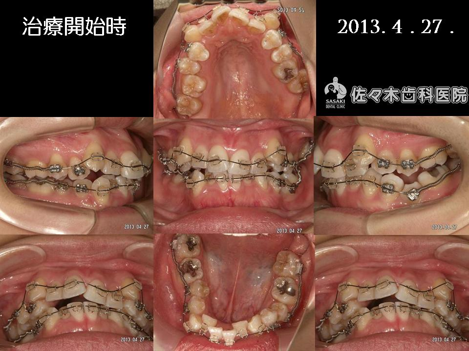 http://www.sasaki-shika.net/case/%E5%A0%A4%E7%A9%82%EF%BC%93.JPG