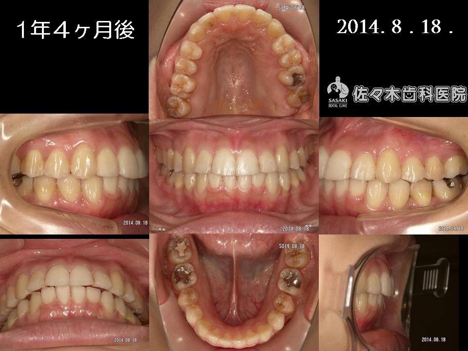 http://www.sasaki-shika.net/case/%E5%A0%A4%E7%A9%82%EF%BC%94.JPG