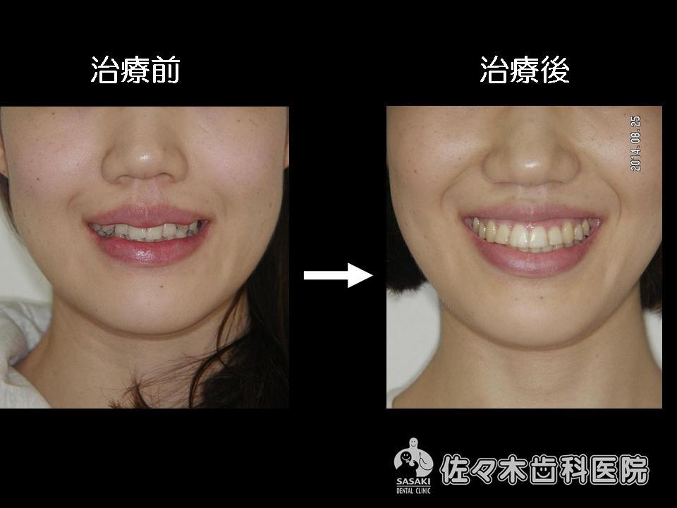 叢生・歯列不正を 早期に改善した 20歳代 女性の治療例