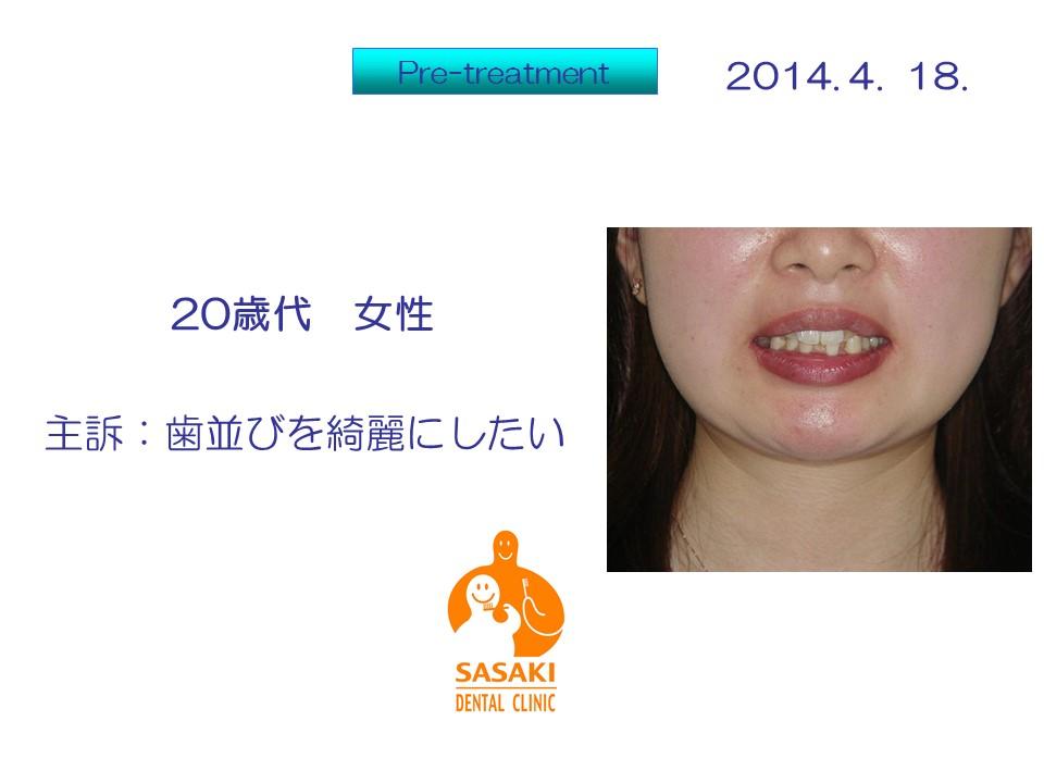 http://www.sasaki-shika.net/case/%E5%B7%9D%E5%B3%B61.JPG