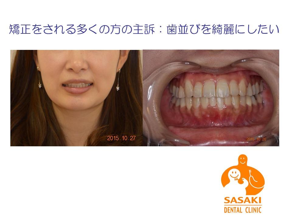 20歳代女性 叢生の歯並びを早期に改善した症例