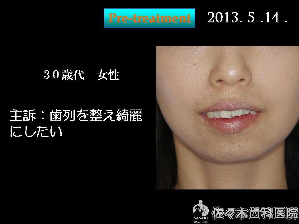 http://www.sasaki-shika.net/case/%E6%A2%85%E6%9D%91%E5%BE%8C%EF%BC%91.JPG