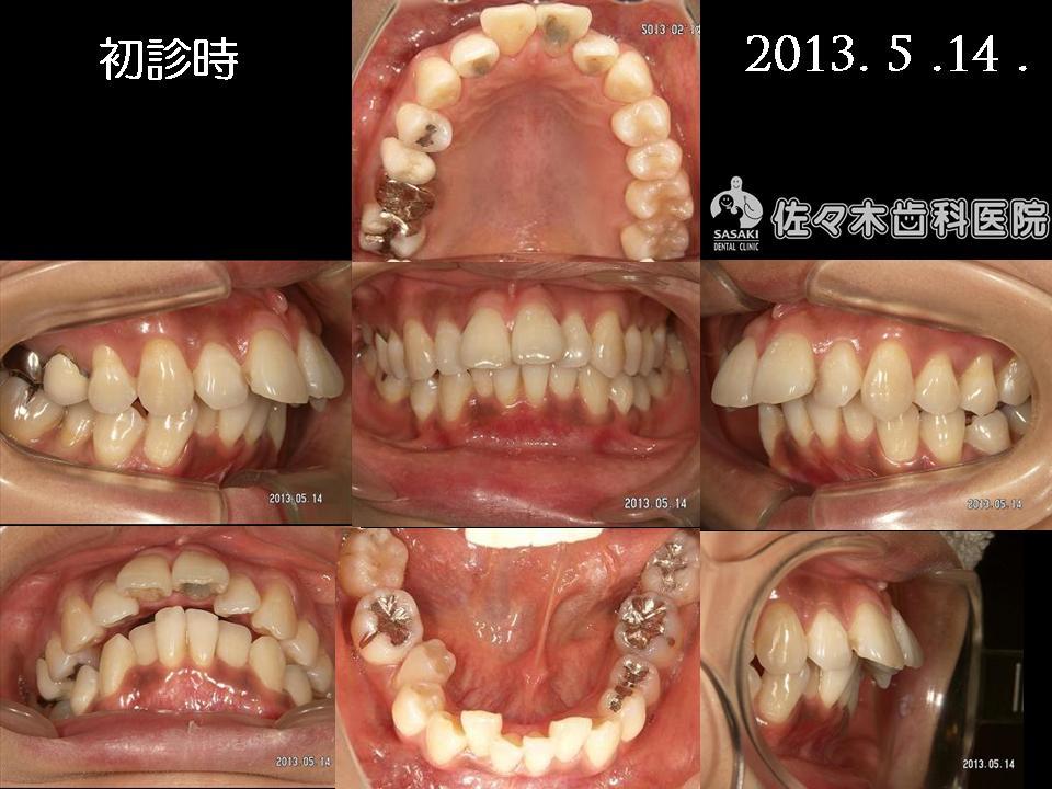 http://www.sasaki-shika.net/case/%E6%A2%85%E6%9D%91%E5%BE%8C%EF%BC%93.JPG