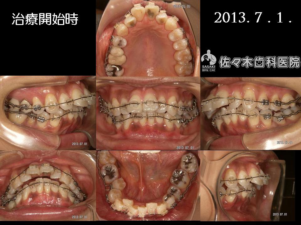 http://www.sasaki-shika.net/case/%E6%A2%85%E6%9D%91%E5%BE%8C%EF%BC%94.JPG