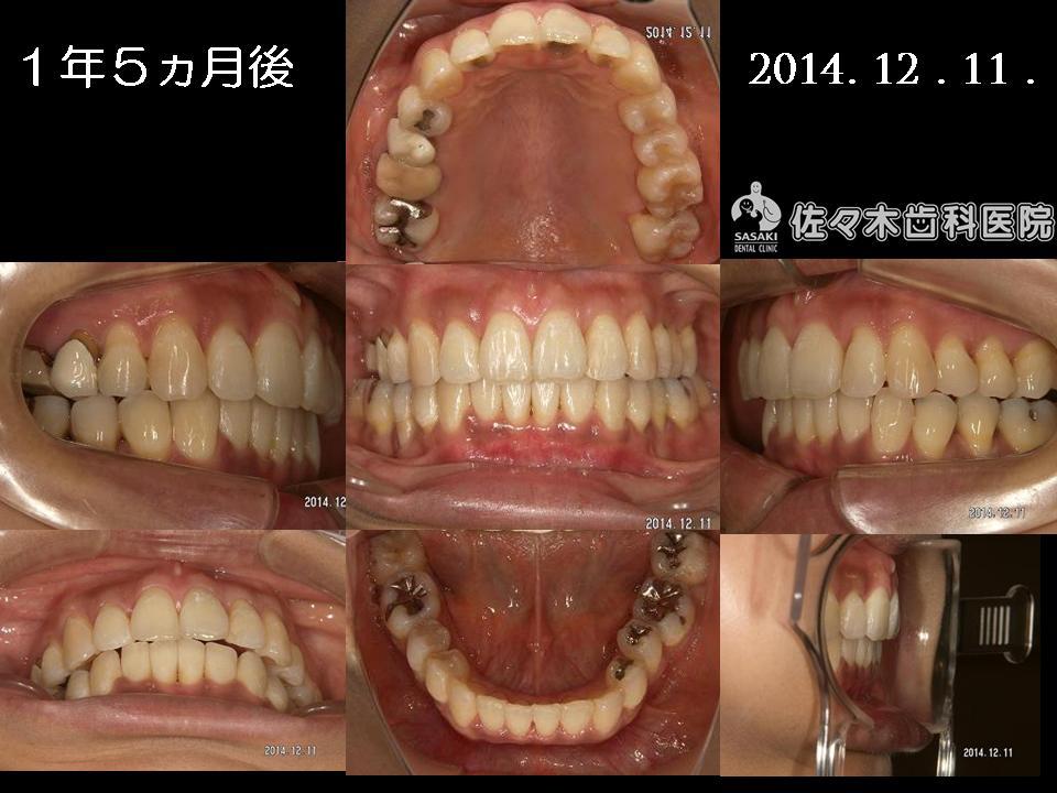 http://www.sasaki-shika.net/case/%E6%A2%85%E6%9D%91%E5%BE%8C%EF%BC%95.JPG
