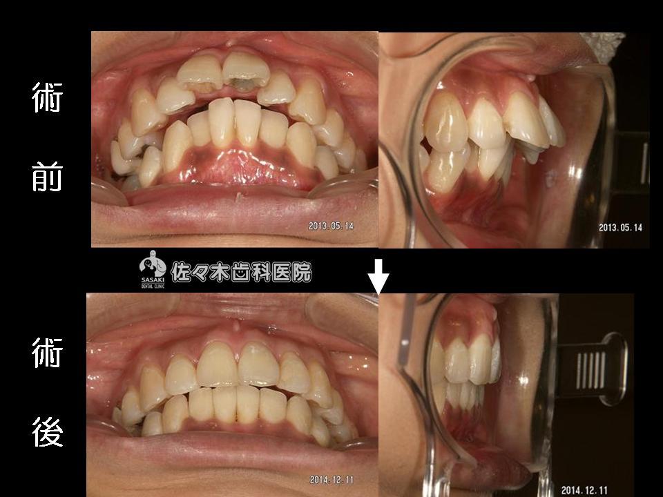 顕著な上顎 前歯の前突を 早期に改善した治療例
