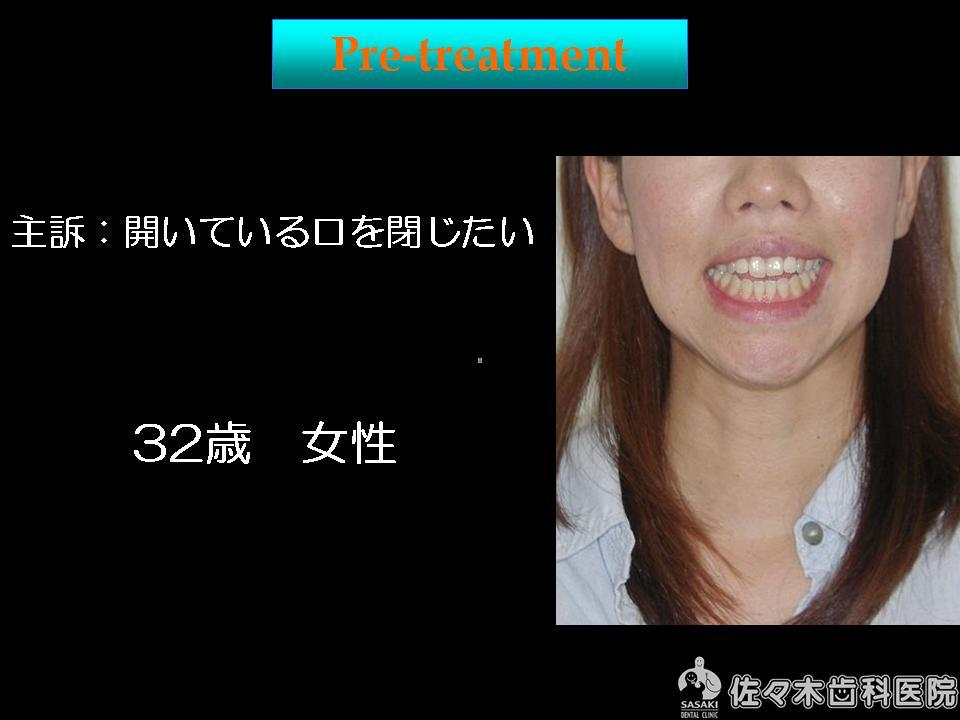 開口という歯列不正の 早期改善例