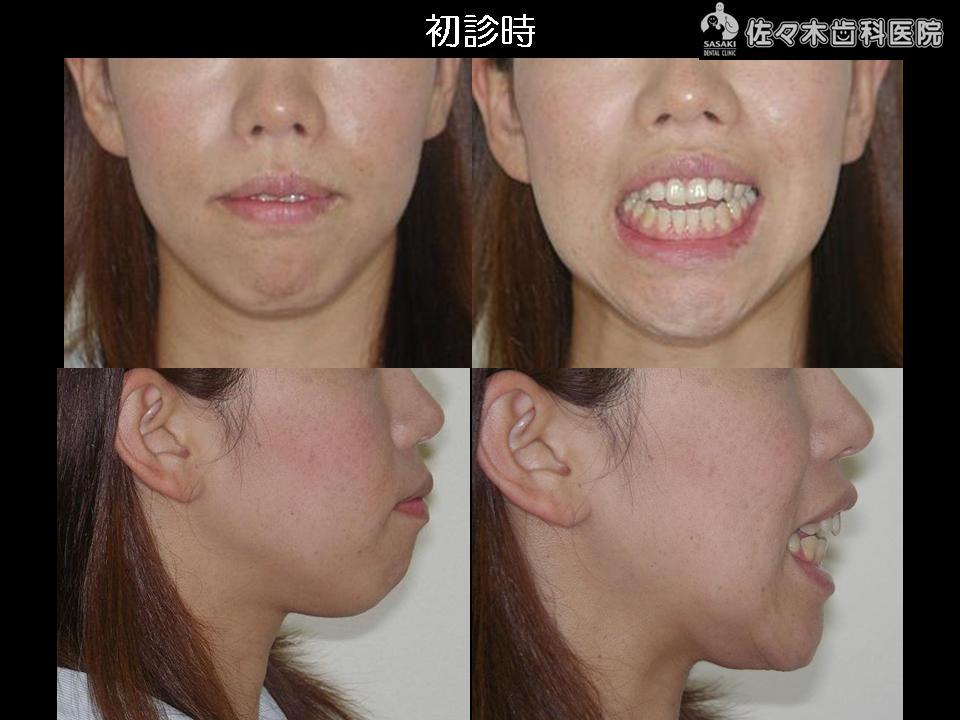 http://www.sasaki-shika.net/case/%E8%A3%95%E5%AD%90%EF%BC%92.JPG