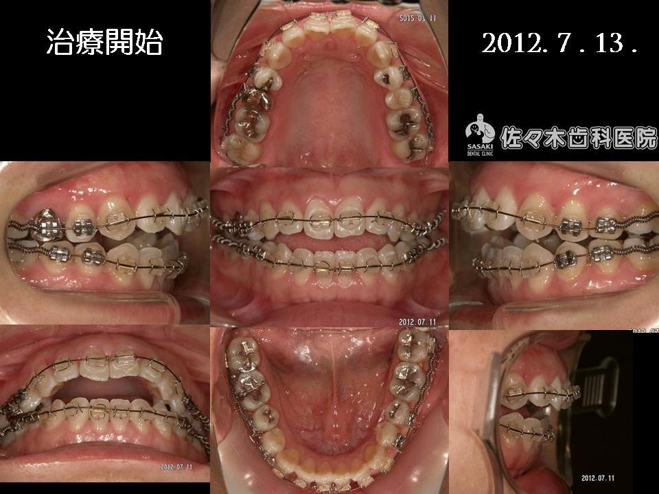 http://www.sasaki-shika.net/case/%E8%A3%95%E5%AD%90%EF%BC%94.JPG