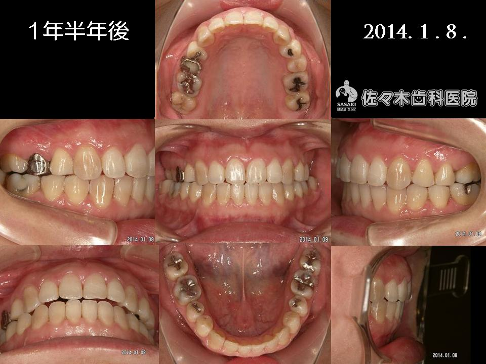 http://www.sasaki-shika.net/case/%E8%A3%95%E5%AD%90%EF%BC%95.JPG