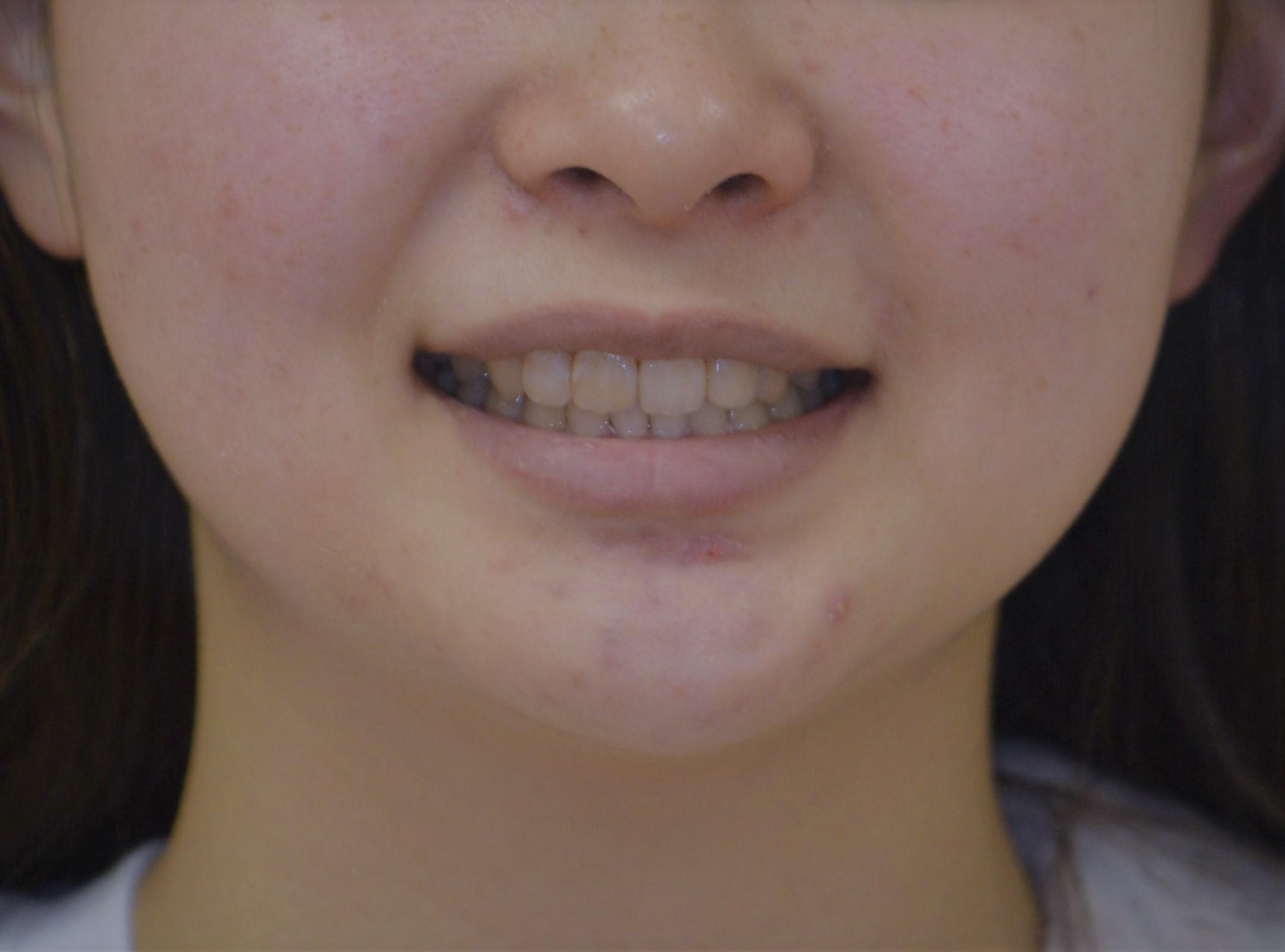前歯の歯並びが気になる 成人女性の矯正治療例 3例