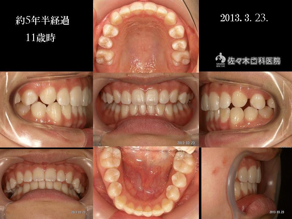 http://www.sasaki-shika.net/case/2013/06/12/%E5%AE%9F%E6%9F%9AJ%EF%BC%94.JPG