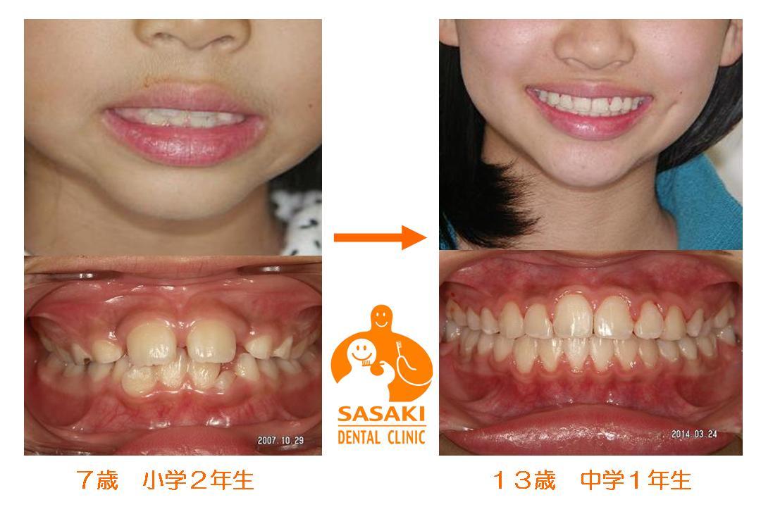 http://www.sasaki-shika.net/case/2014/04/23/mike05.JPG