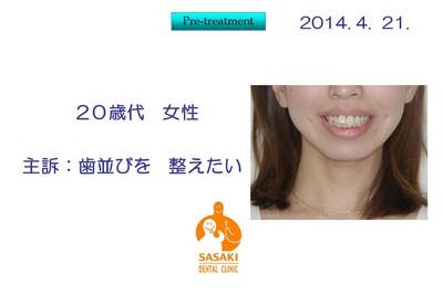 早期の改善が必要とされた 歯列不正治療例